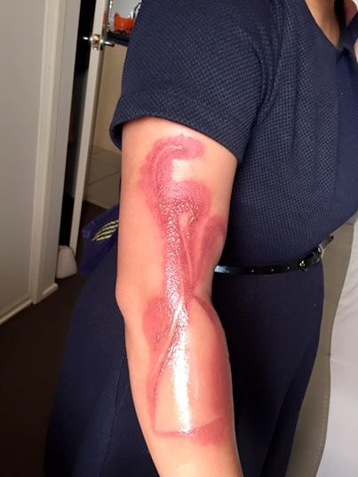 melanie-tan-pelaez-suffers-a-second-degree-burn-on-her-right-arm-after-falling-asleep-on-her-iphone-7