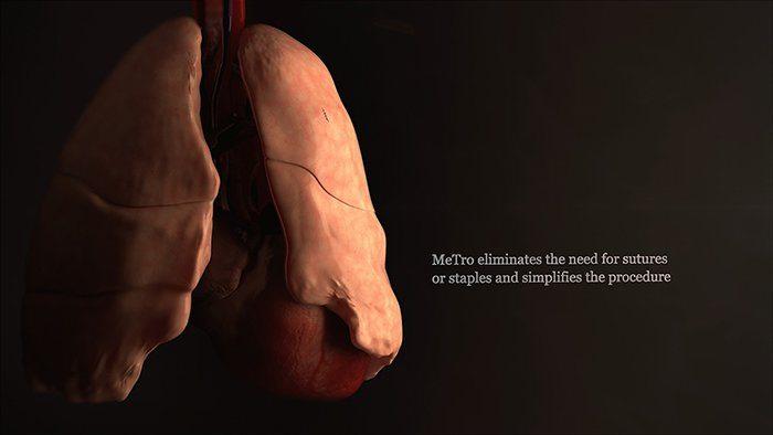špeciálny gél MeTro zaceľuje rany