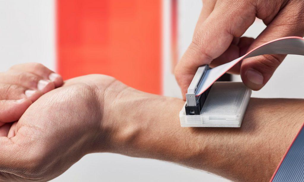 sKan zariadenia na detekciu melanómu kože