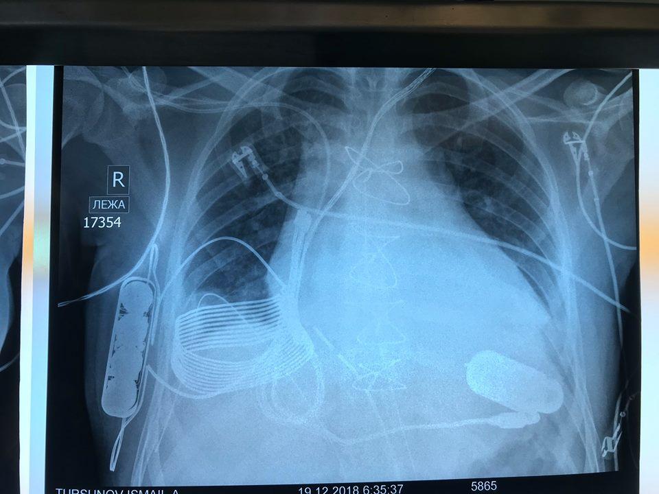 bezdrôtový kardiostimulátor